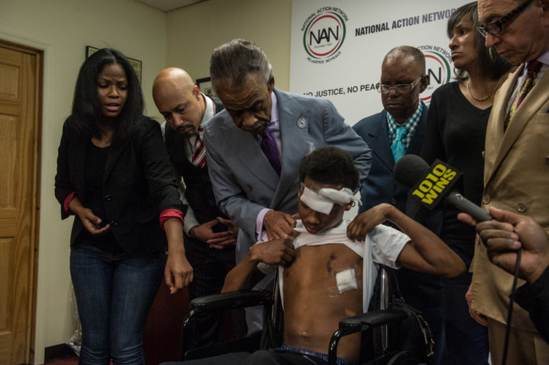 Javier Payne and his family joined Rev. Al Sharpton at the National Action Headquarters in Harlem on May 24, 2014 to call for swift justice in the recent incident involving the NYPD. Rev. Al Sharpton lifts Javier Payne's shirt to show his wounds. (Robert Stolarik for JJIE)
